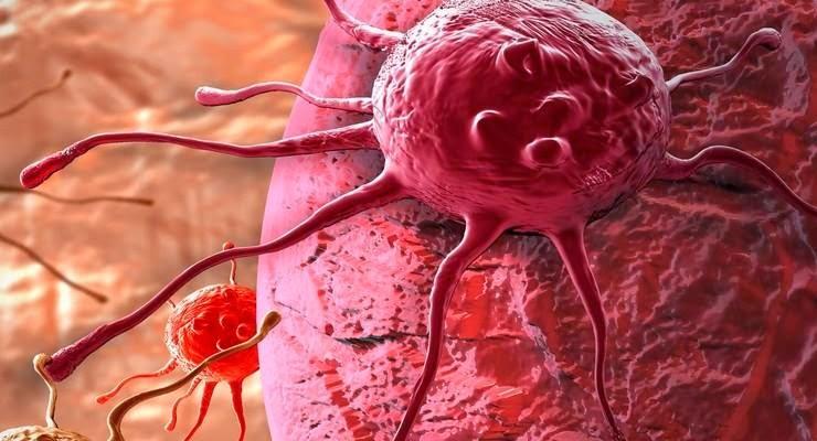 Beda Tumor dan Kanker