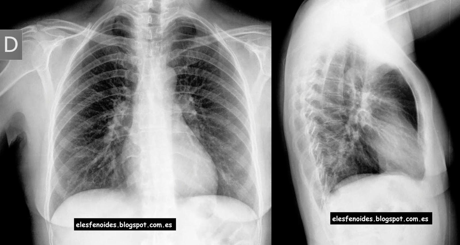 El esfenoides: Neumonía segmentaria [3a d]. 2 imágenes 1 caso.