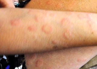 Urticaria (hives) - NHS Choices