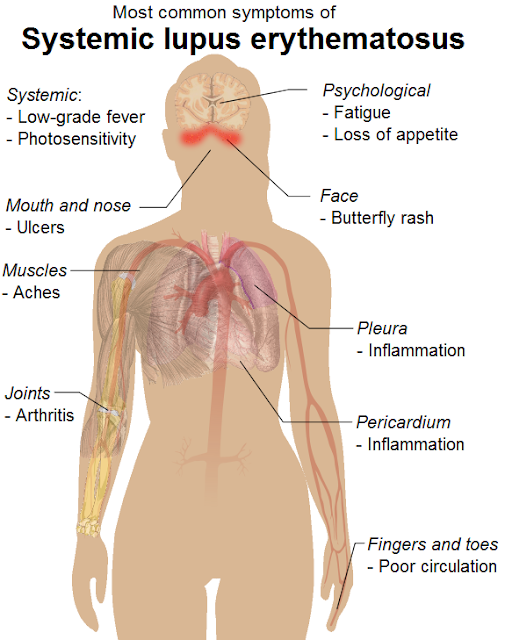Systemic Lupus Erythematosus Symptoms, Diagnosis, Causes, Treatment, Prevention