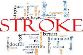 Penyebab Cara Mencegah Stroke
