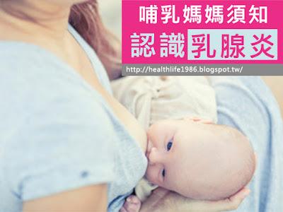 認識乳腺炎、乳腺阻塞