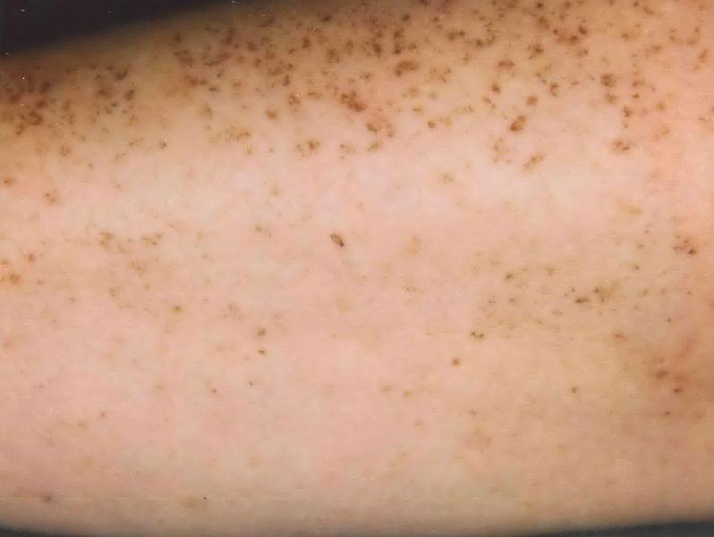 Baratos de la crema de las manchas de pigmento en la farmacia