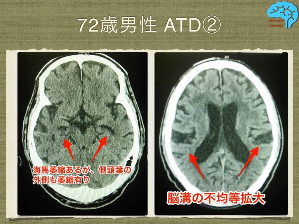72歳男性アルツハイマー CT画像