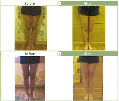 [Yakson Program] Make your legs STRAIGHT! Bow legs care, Pretty legs care program