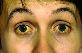Cara Mengobati Penyakit Kuning