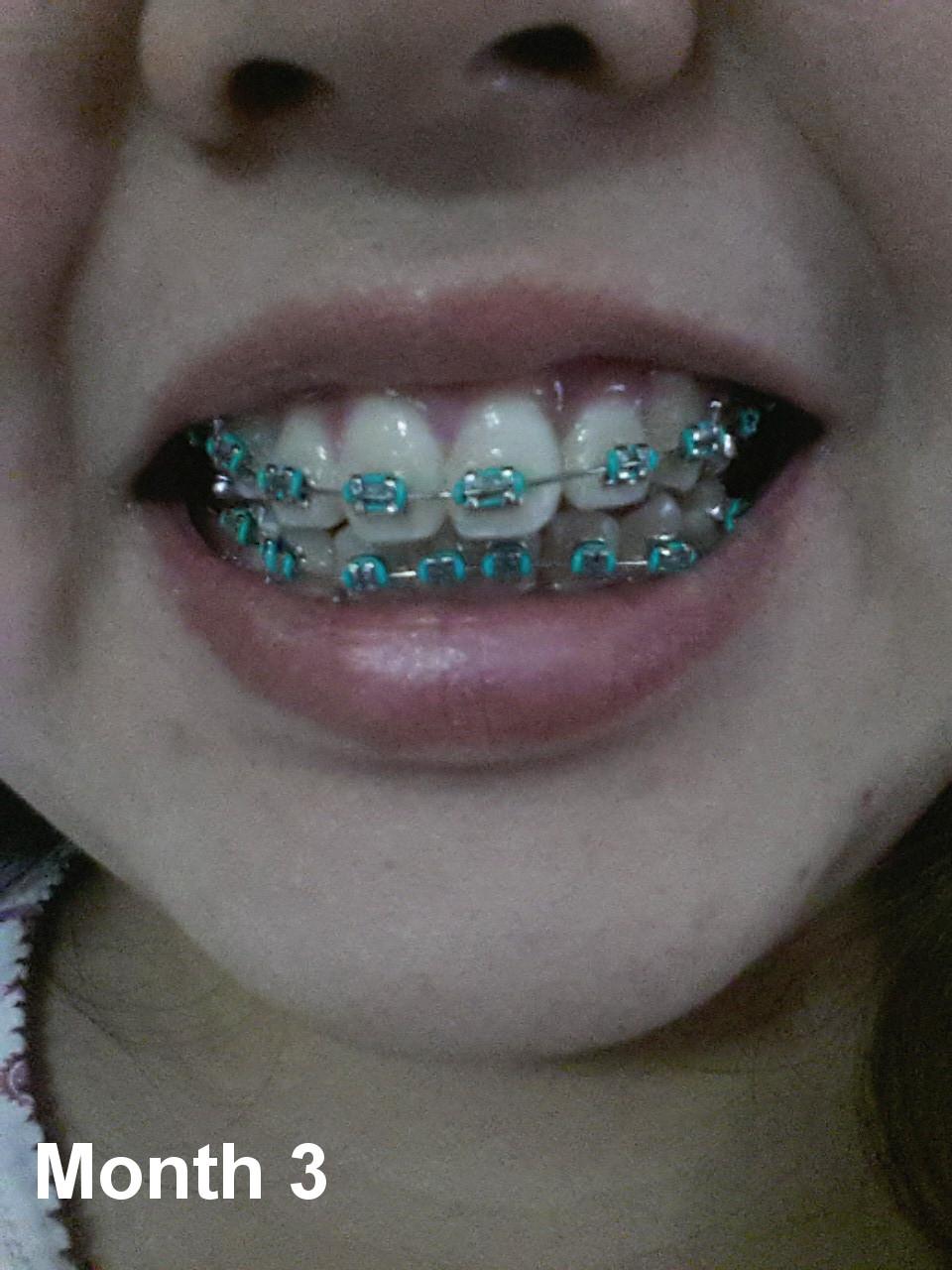 Teeth Talk: I\'ve got (adult) braces!   What The Plus!