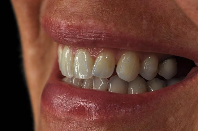 dental camera