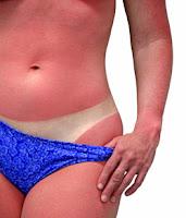Güneş-Kremi-en-iyi-hangisi-güneş-yanığı-olan-kadın