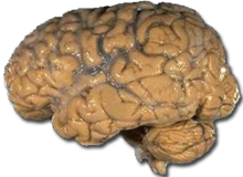 220px-Human_brain_NIH.png
