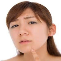 Adult Acne- Causes Of Adult Acne