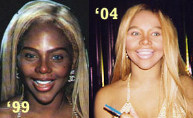 lil kim plastic surgery before and after breast implants