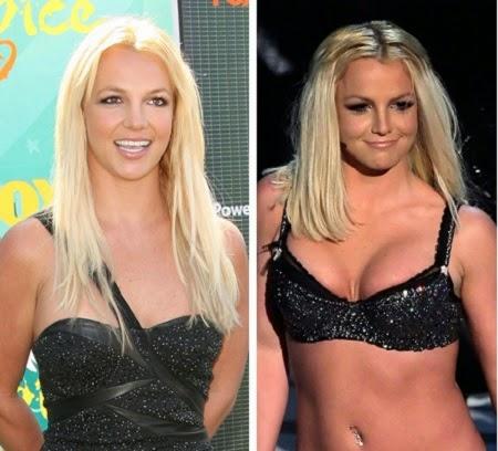 El Antes y el Después de Britney Spears