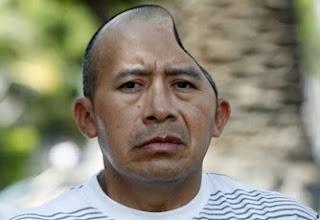 Homem recebe indemnização de 44 milhões depois de perder metade da cabeça