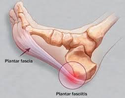 Obat peradangan sendi tumit kaki