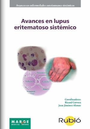 Avances en Lupus Eritematoso Sistémico