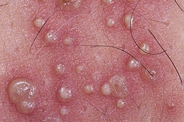 Early Signs of Genital Herpes in Men