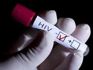 contagio del sida