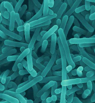 Life and Love in the Petri Dish: Listeria hysteria at 6w0d
