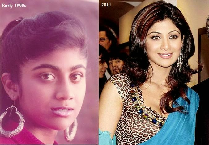 top 6 best and worst plastic surgeries of bollywood