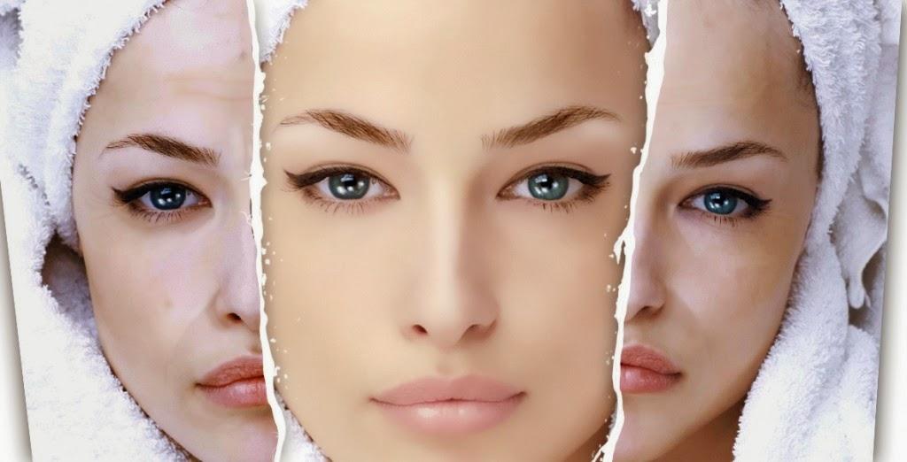 La pigmentación en la piel después del láser