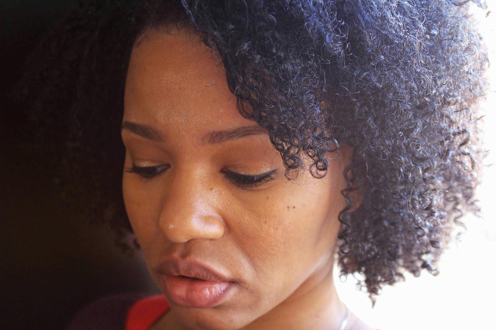 www.curlyincolorado.com scalp psoriasis natural hair