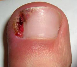 image of ill fitting shoe caused ingrown toenail