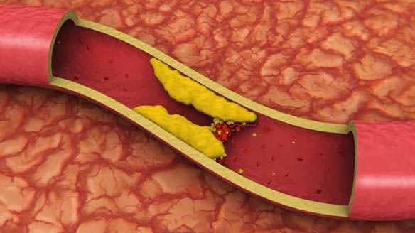 Obat Untuk Asam Urat dan Kolesterol