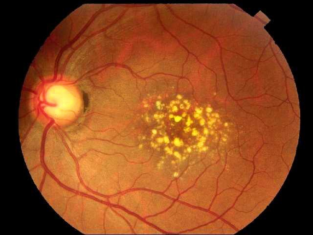 macular dystrophy retina - photo #35