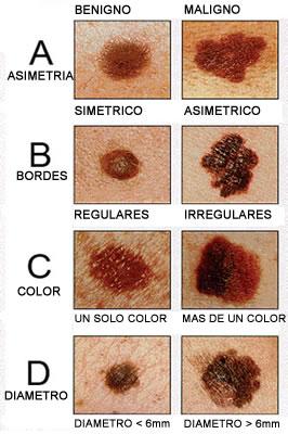 Como arreglar es eficaz las cicatrices de los granos sobre la persona