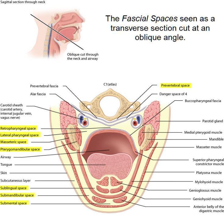WizDent: Submandibular Space Infection