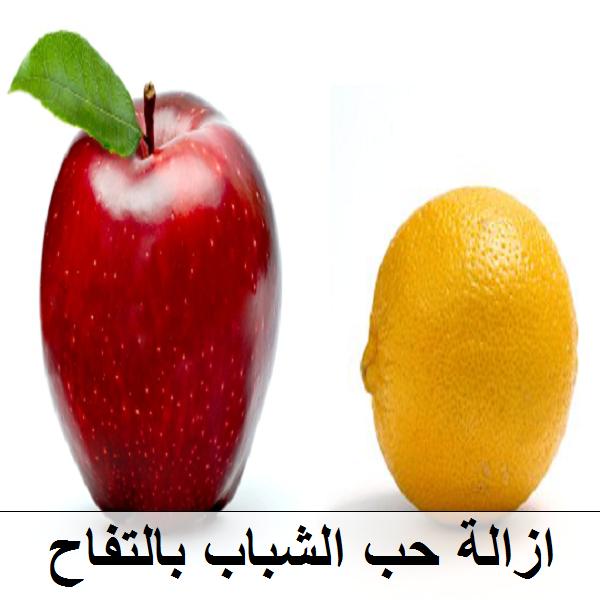 التخلص من حب الشباب بعصير التفاح والليمون