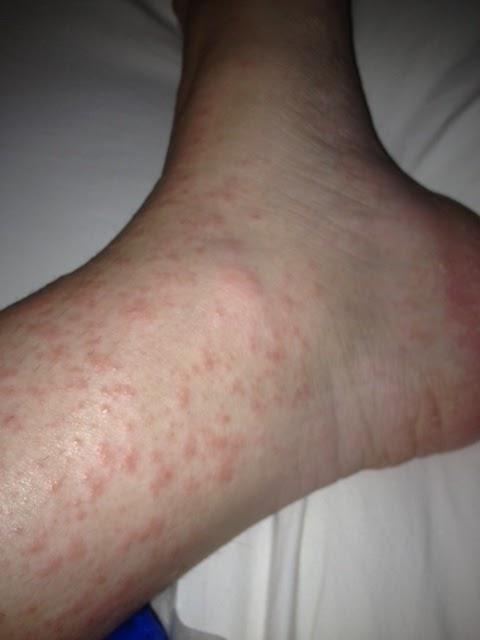 Autoimmune progesterone dermatitis in a patient with ...
