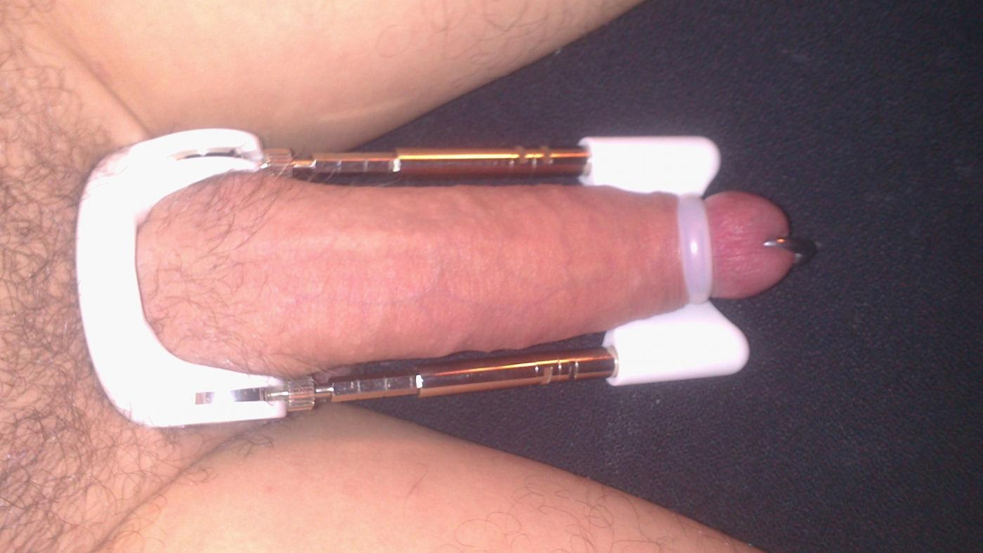 Укол в пенис, Укол в член: инъекции гиалуроновой кислоты и ботокса 2 фотография