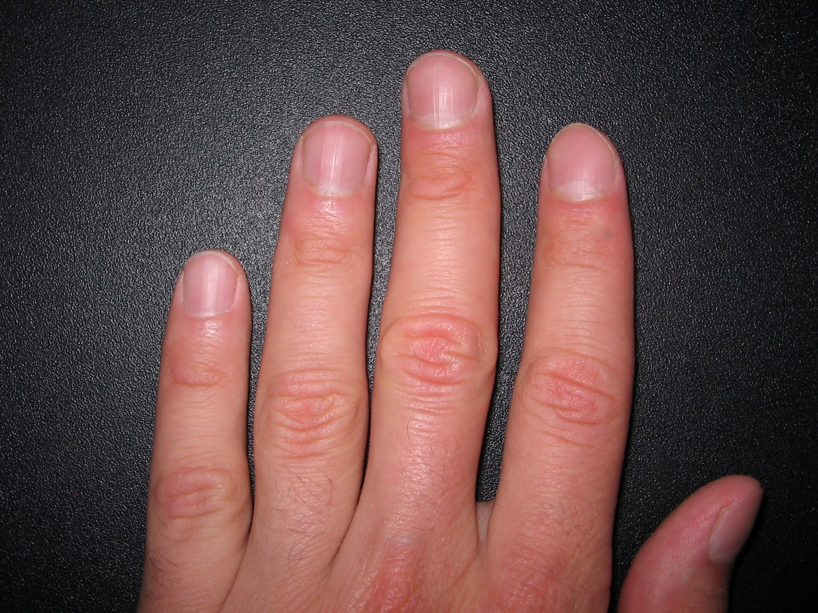 My Question Is About Fingernails And The Piano I Know That Some Teachers Insist On Very Short All Their Students