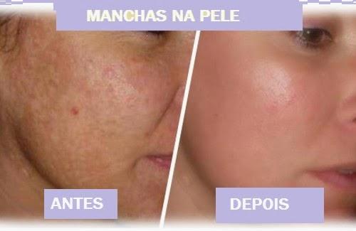 Nata antes e depois de pigmentação em uma cara