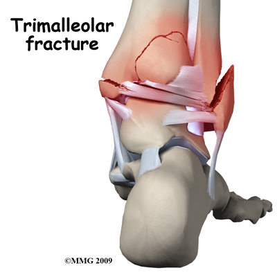 These Days Broken Ankle Trimalleolar Ankle Fracture