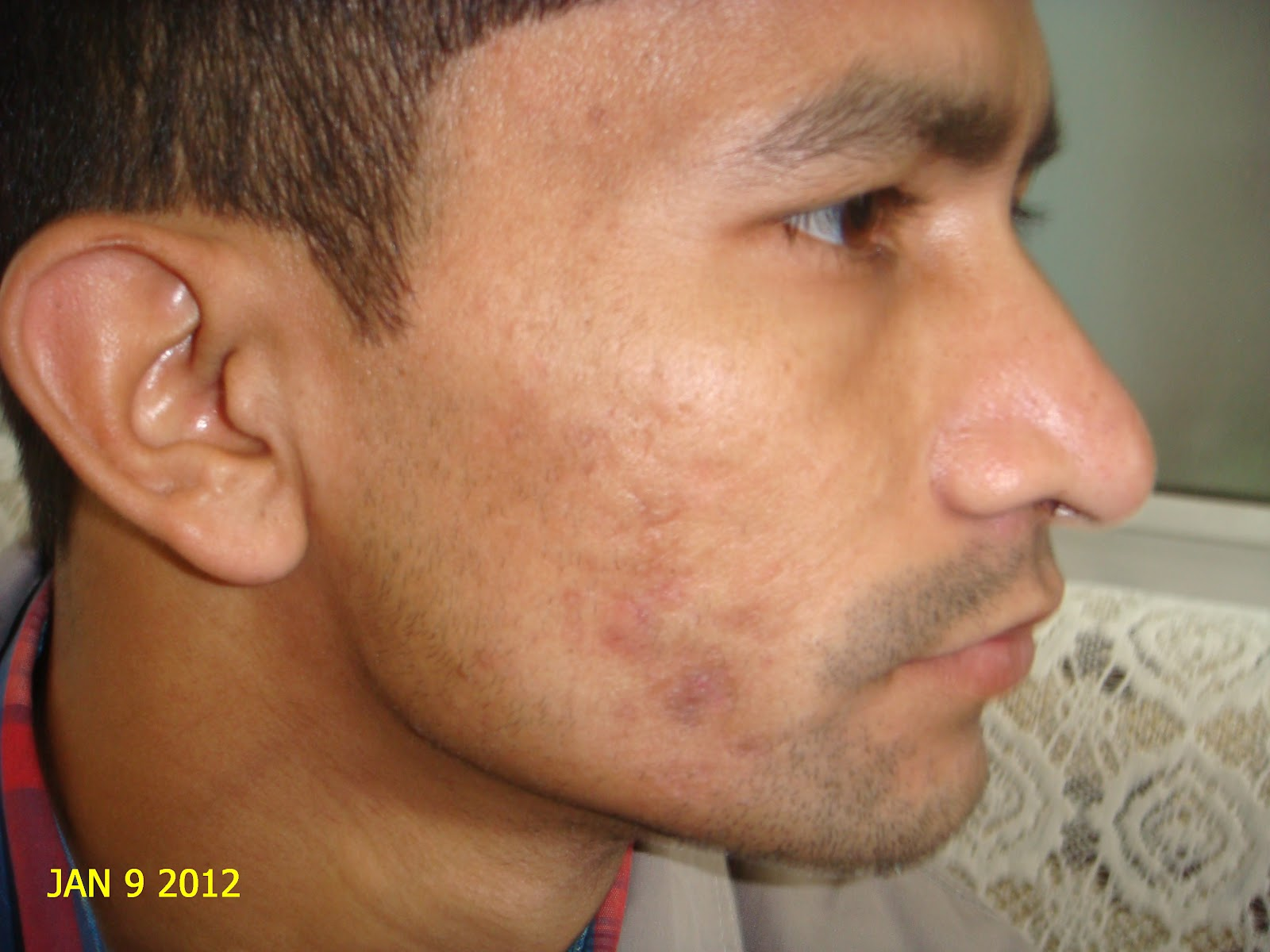 Best Natural Methods To Get Rid Of Papules On Face