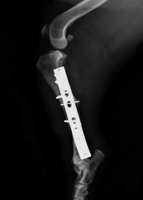 fractura de tibia con agujas y cerclajes