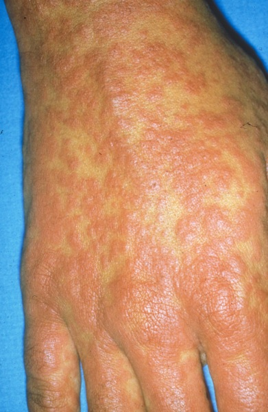 Itchy skin bumps skin rashes main causes symptoms amp treatments