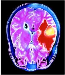 mri scan images of brain tumor Photos real pictures color