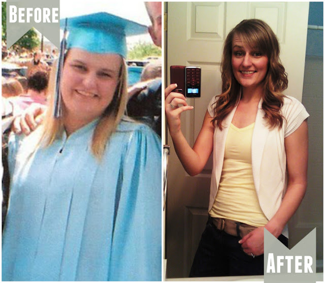 UNDONE: weight loss before and after