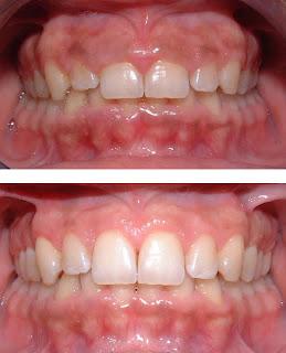 gingivectomia encias crecidas