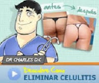 ELIMINAR CELULITIS AHORA MISMO