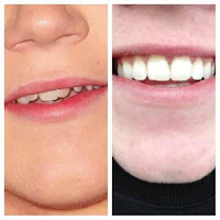 One Direction's Niall Horan's teeth...before and after braces.