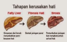 SIHAT CANTIK CERGAS Supplemen Untuk Penyakit Hati Liver