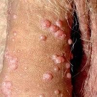 Obat Antibiotik Kutil Kelamin Pria