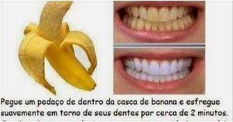 Como blanquear los dientes en casa - Como blanquear los dientes en casa ...