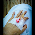 Cerita Tentang TBC Usus: Diagnosa Sulit Tegak