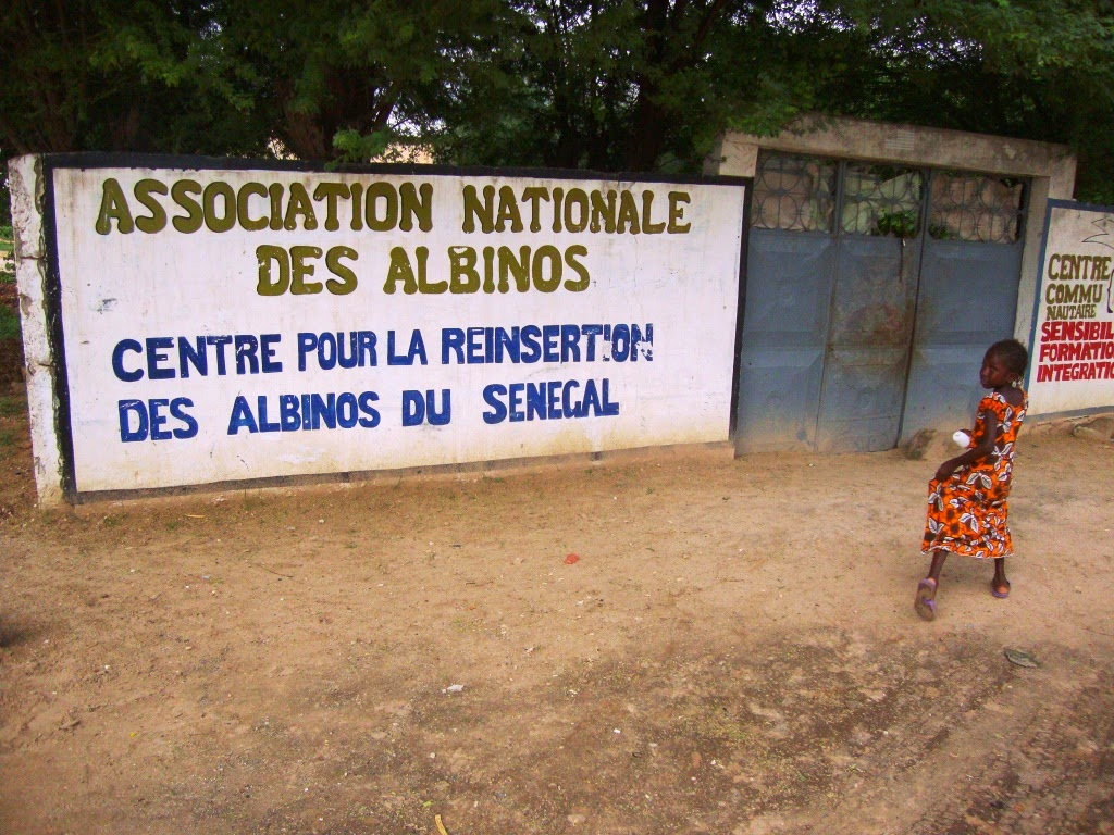 albinos afrique massacre